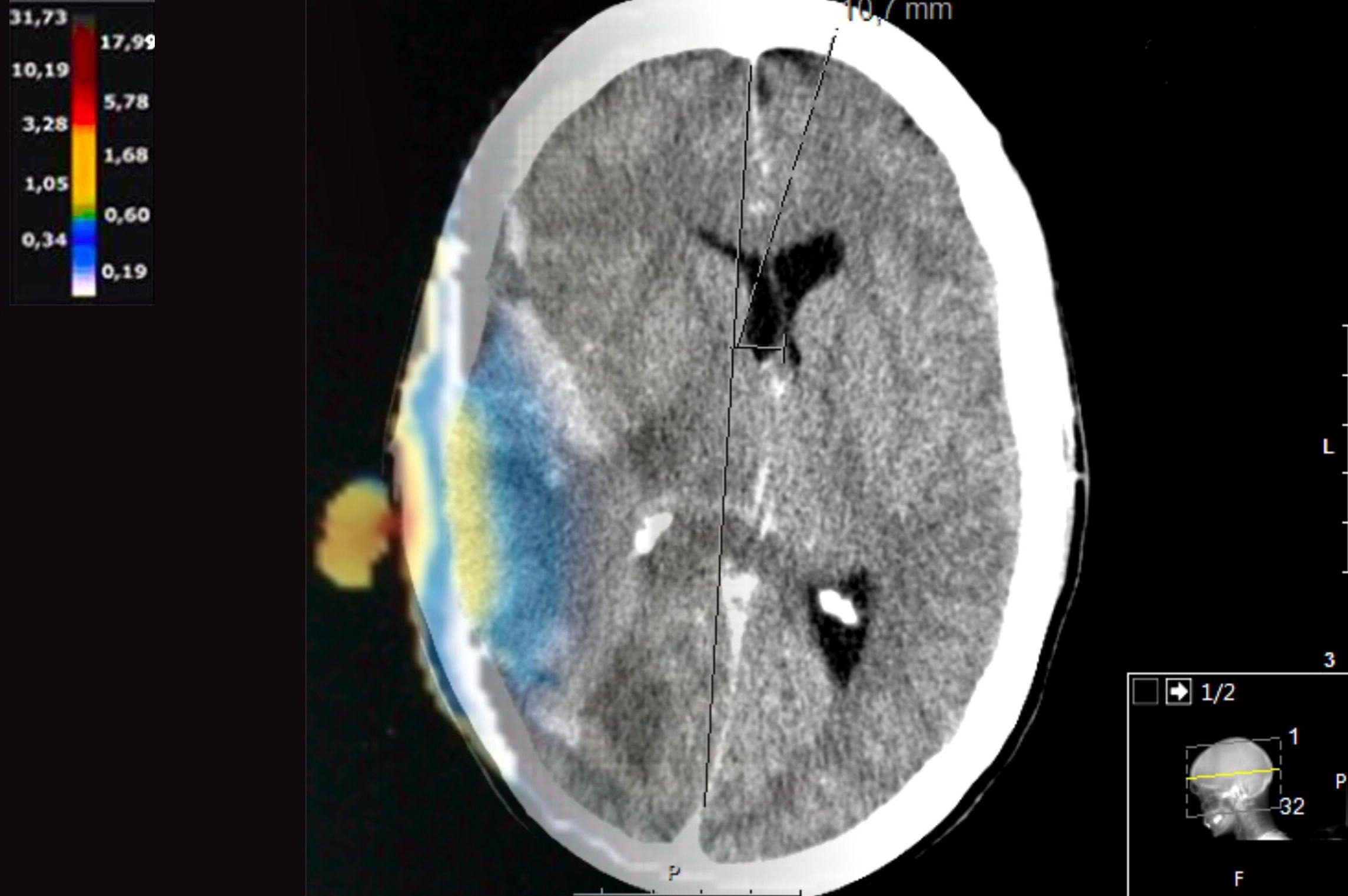 Central nervous system lymphoma and radiofrequency radiation – a case report and incidence data in the Swedish Cancer Register, Smombie Gate | 5G | EMF